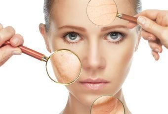 BOTOX and other fillers