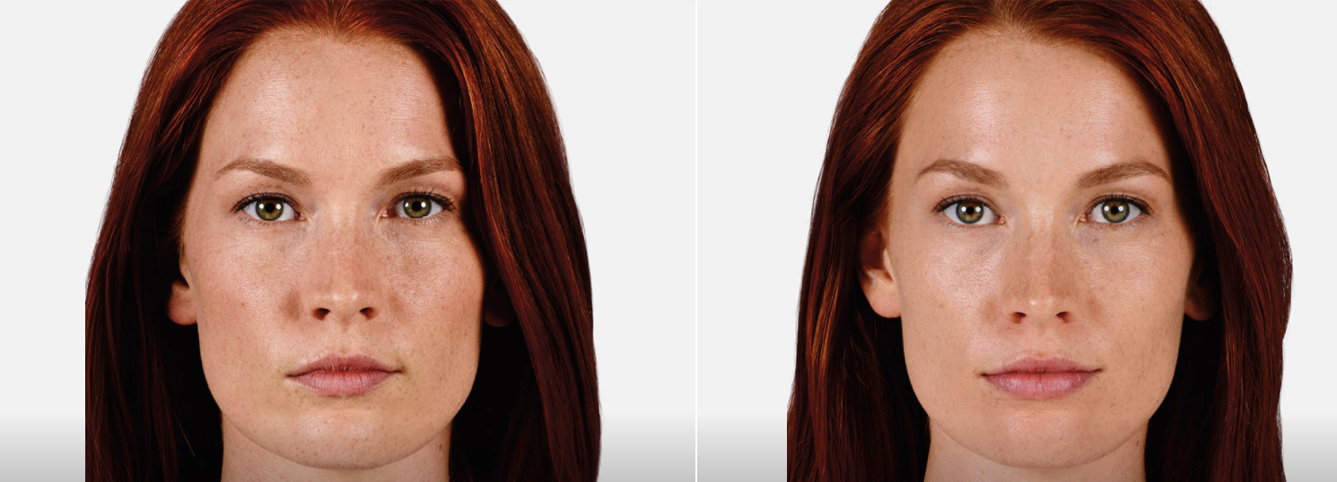 juvederm ultra before and after