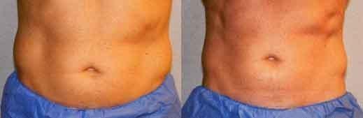 men-fat-reduction-love-handles