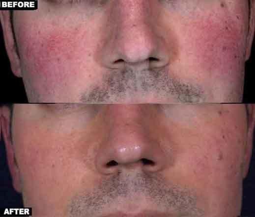 men-rosacea-face-nose
