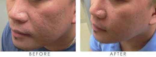 men-scars-face-cheek