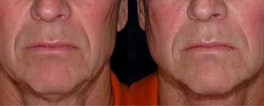 men-skin-tightening-chin-elder