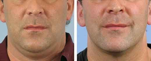men-skin-tightening-chin