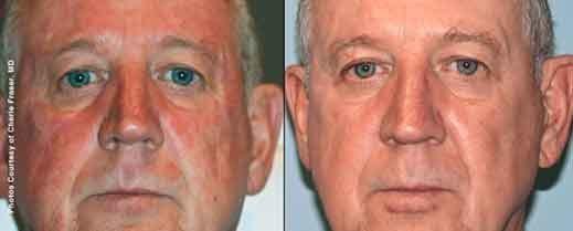 men-sun-damage-face-elder